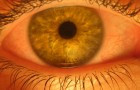 Health: Pterygium affects many anglers' eyes